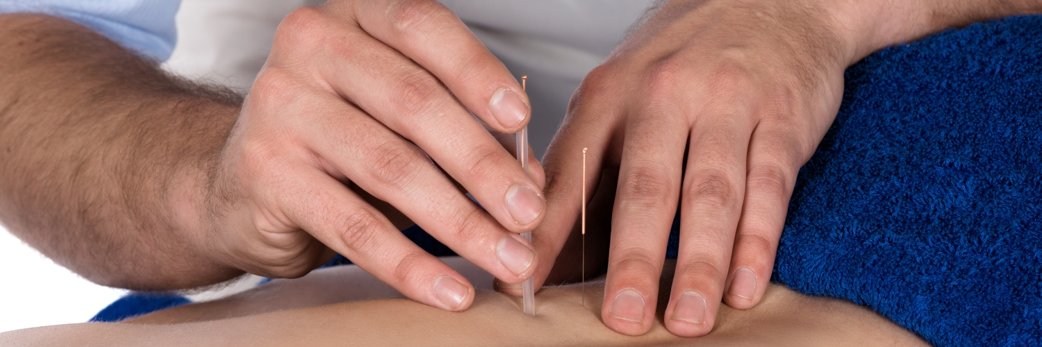 Dry needling on a man's back